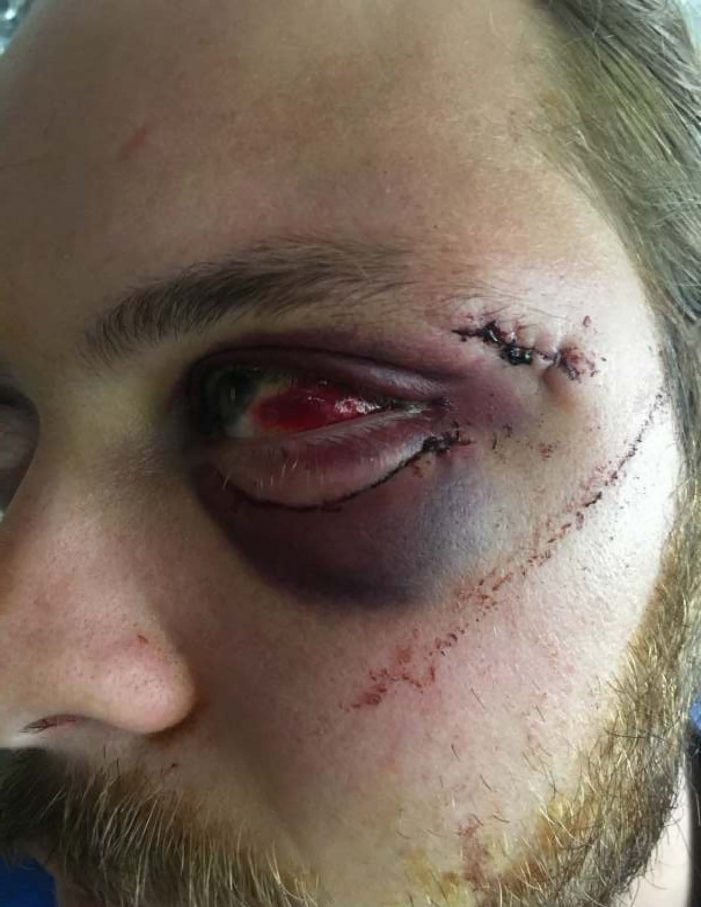 MCSO deputy under investigation for alleged beating at wedding
