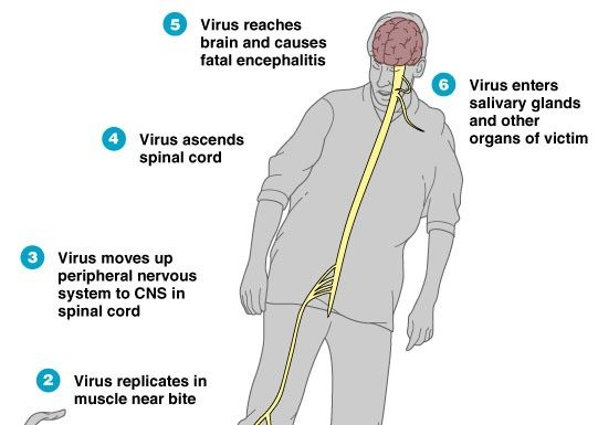 Rabies in humans