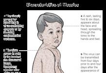 measles, ocala, u.s., ocala news, op