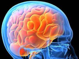Migraine Headaches, Marion County