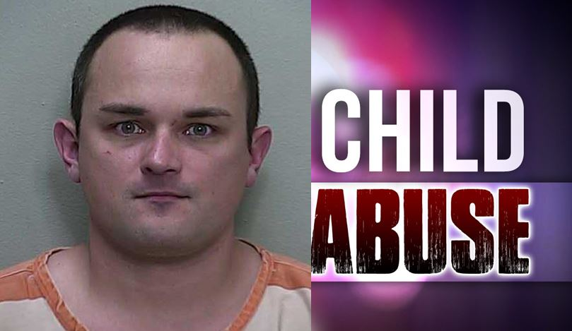 child abuse, ocala news, ocala post, child beating, baby
