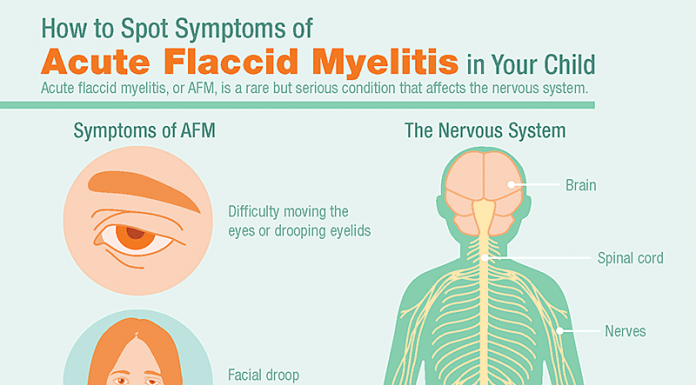 Acute flaccid myelitis (AFM), health, dcd, ocala post, ocala news