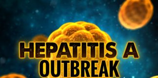 hepatitis outbreak, ocala news, ocala post, ocala news